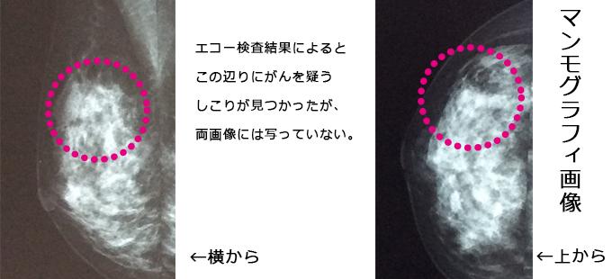 ultrasound_L